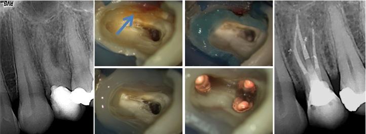 Aufbaufullung - Wiederaufbau vorgeschädigter Zähne