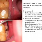 Diagnostik mit Dentalmikroskop