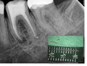 Fragmentchir - Endodontische Mikrochirurgie