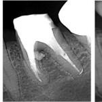 Perforation1 - Wurzelkanalbehandlungen mit Dentalmikroskop