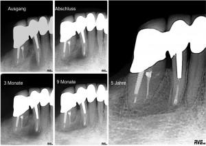 Endodontische Mikrochirurgie