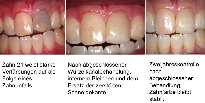 bleichen, Zahnaufhellung