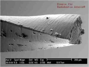 Vergrößerte Betrachtung der experimentell abgebrochenen Feile unter Sicht mit dem Rasterelektronenmikroskop. Man beachte die Ermüdungsrisse entlang der Schneidekante.